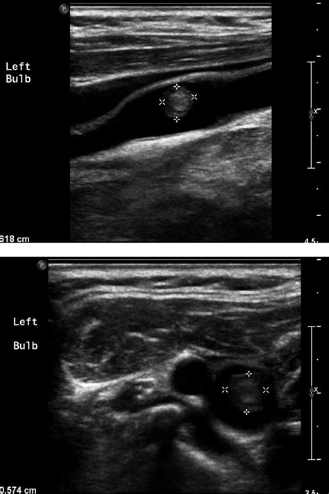 Teaching NeuroImages: Disappearing intraluminal thrombus